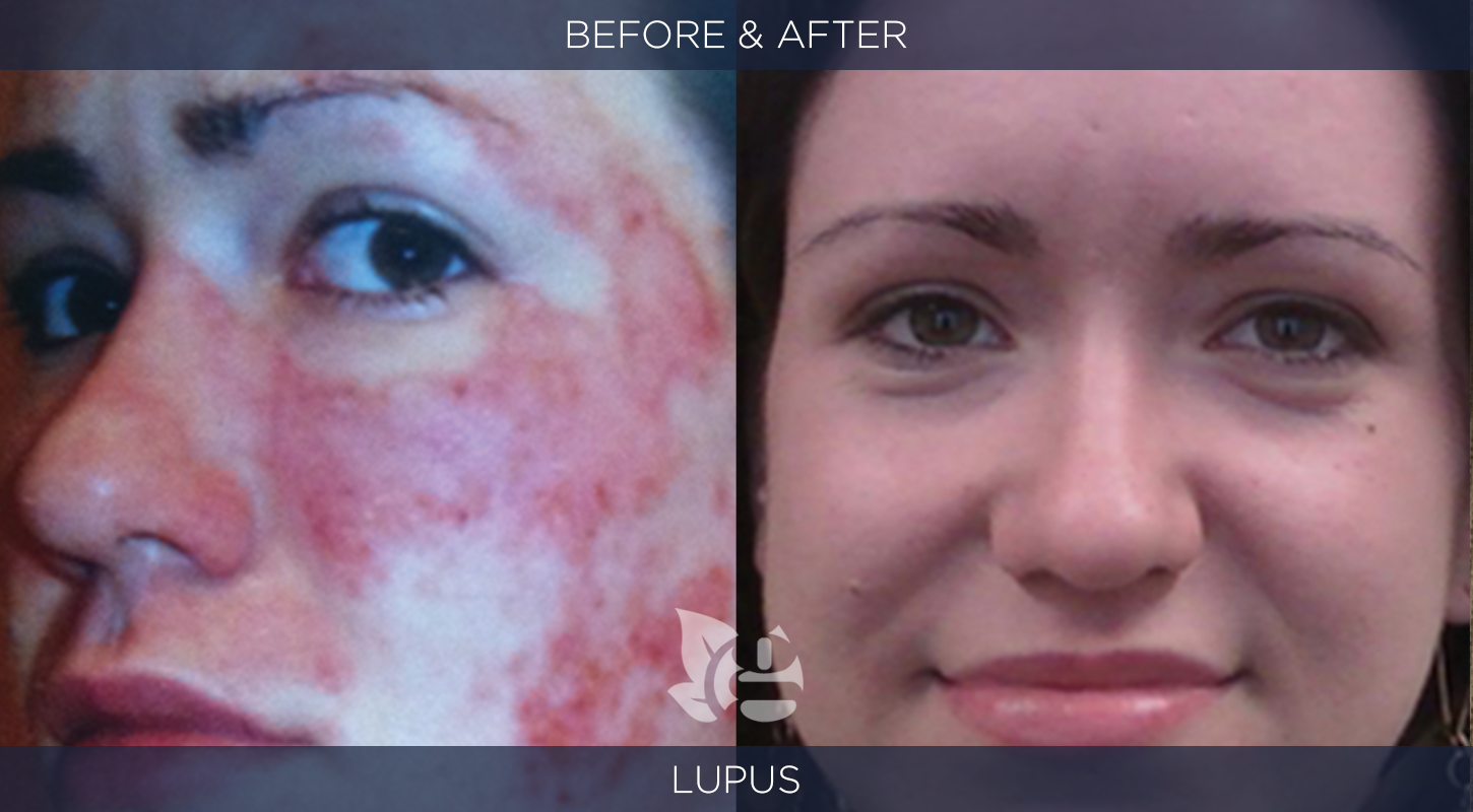 Lupus Before and After