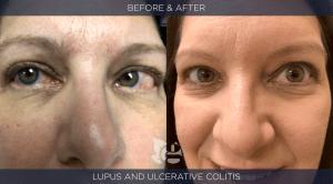 GTC_BA-lupus-5 copy