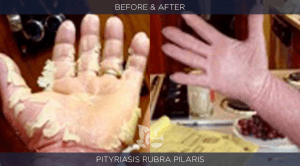 Pityriasis Before and After