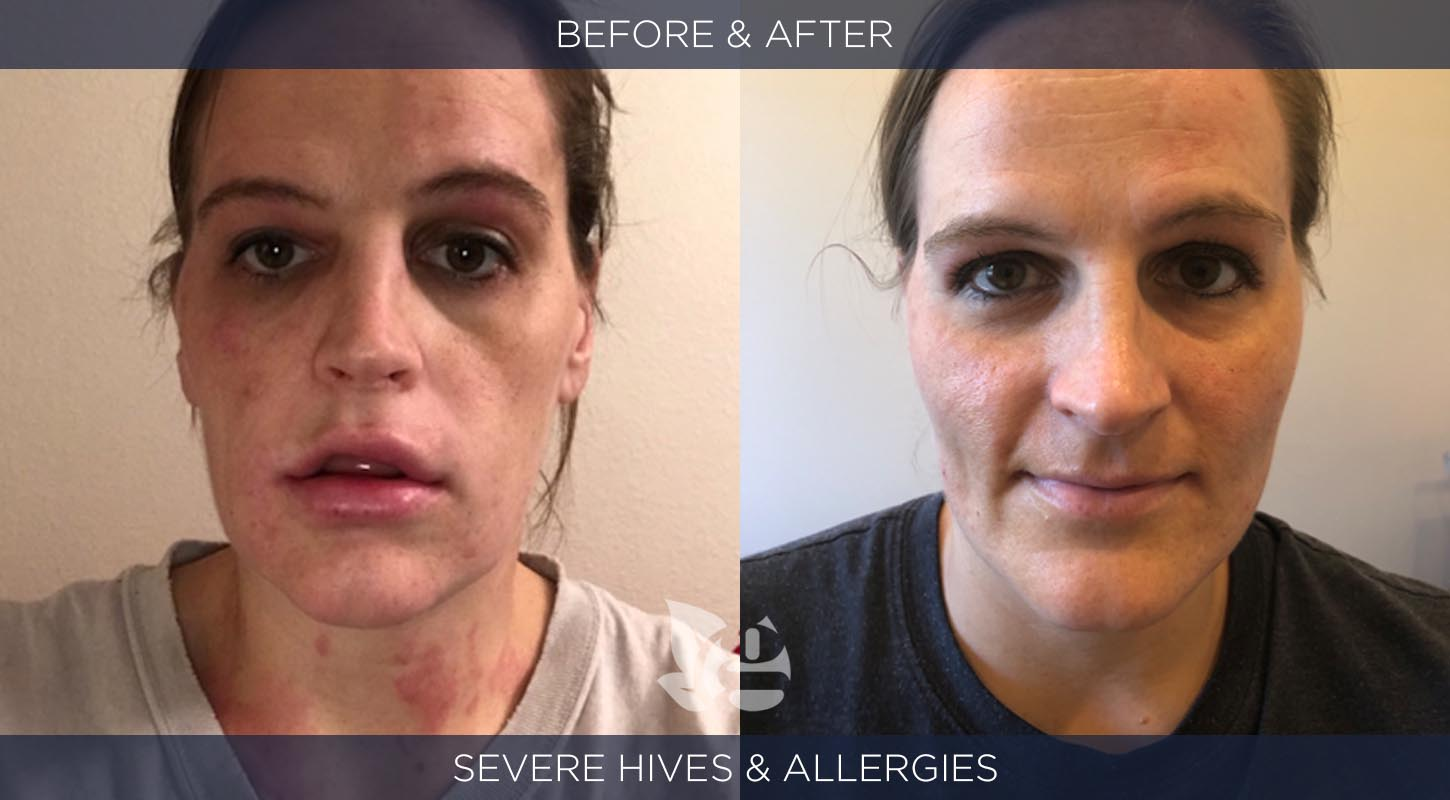 Allergies Before and After