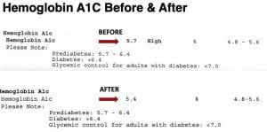 HgA1C Before and After